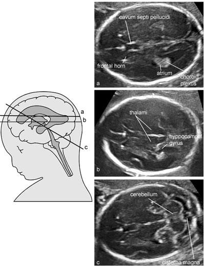Us obstetric fetal anatomy scan