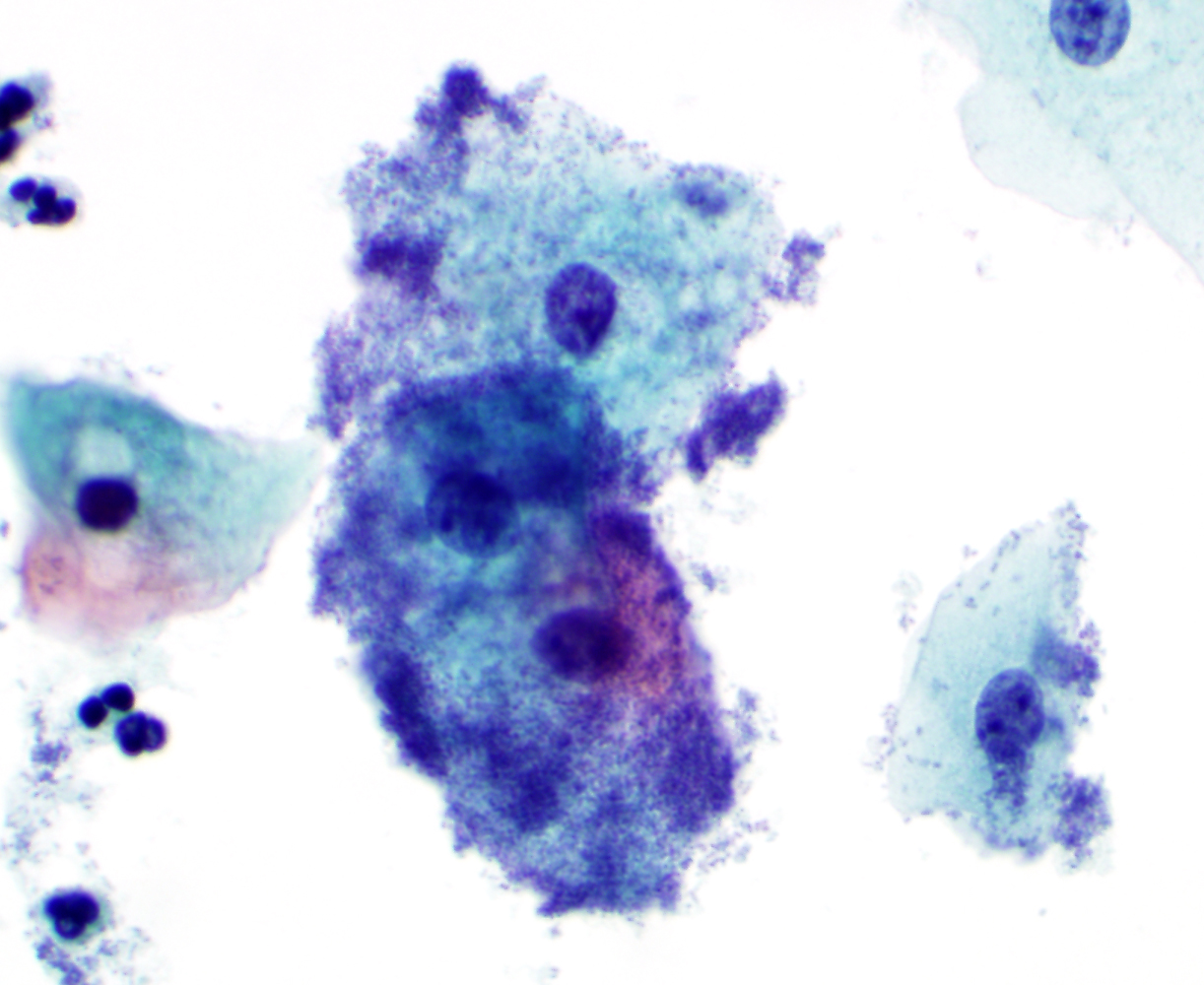 global library of women u0027s medicine cytopathology doi 10 3843